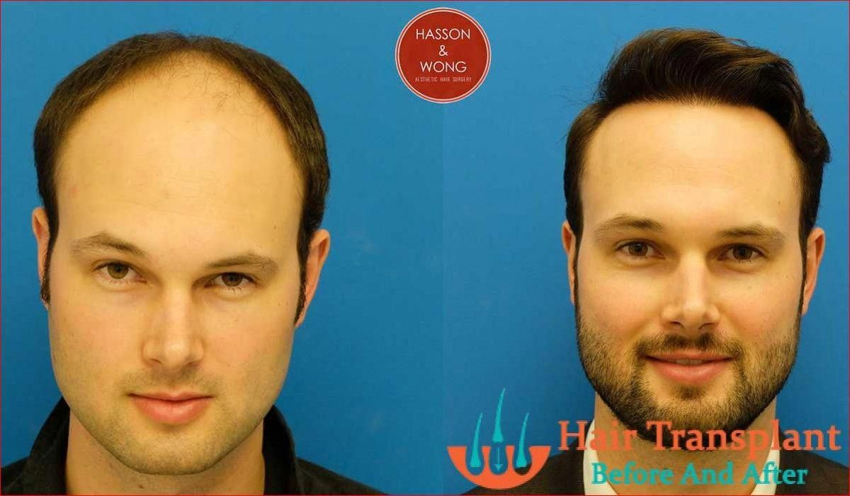 How Much Does It Cost To Get Hair Transplant Surgery