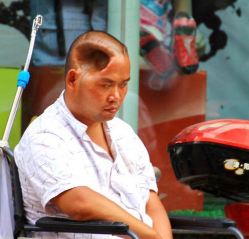 Un hombre chino vive con un agujero en su cabeza.