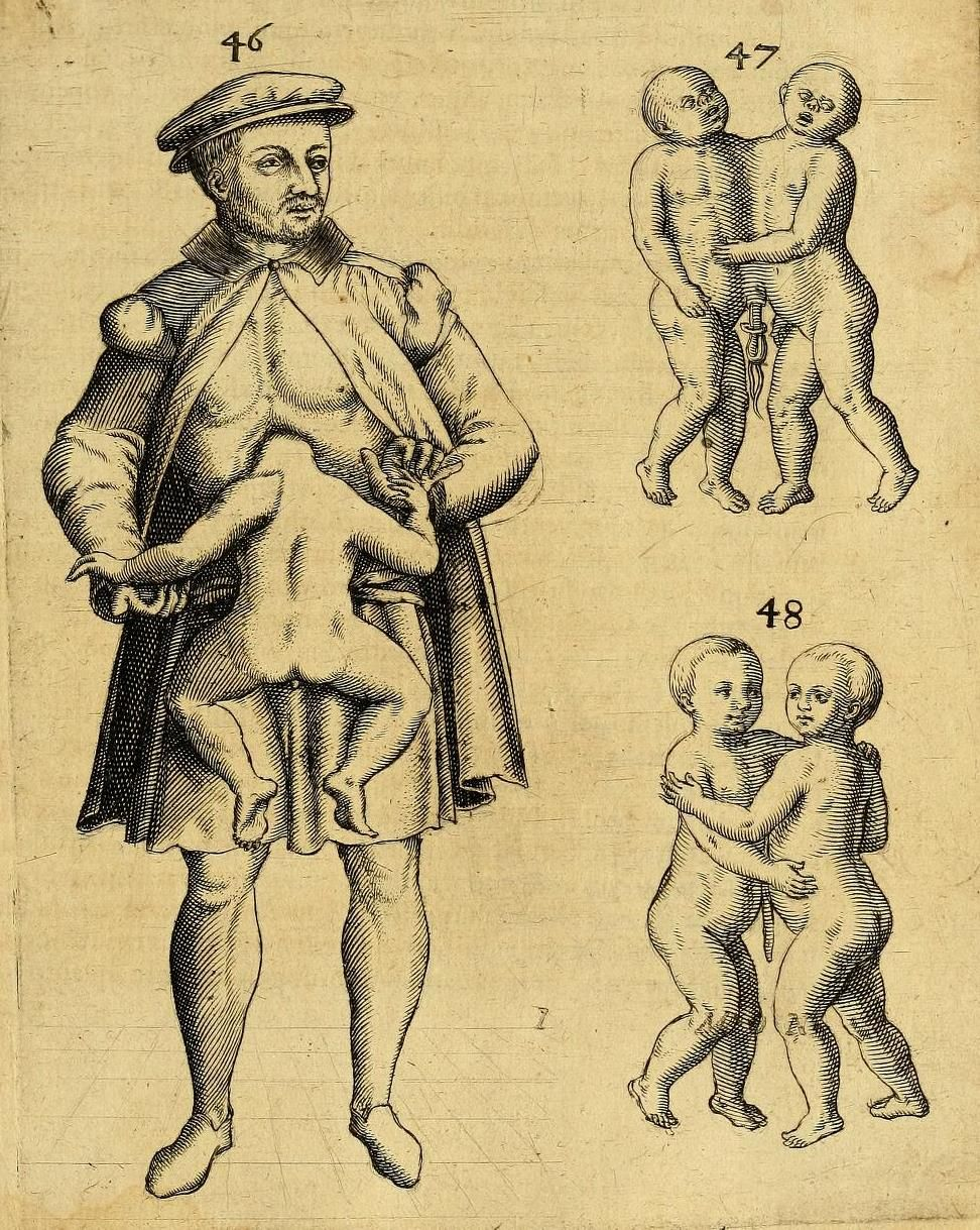 Prior To Modern Caesarian Sections The Life Of The Mother Was