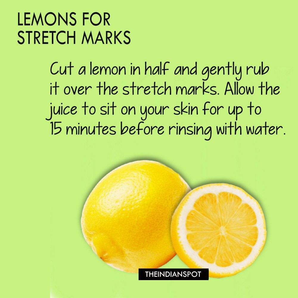How to Get Rid of Stretch Marks Naturally  Tips That Work  Other