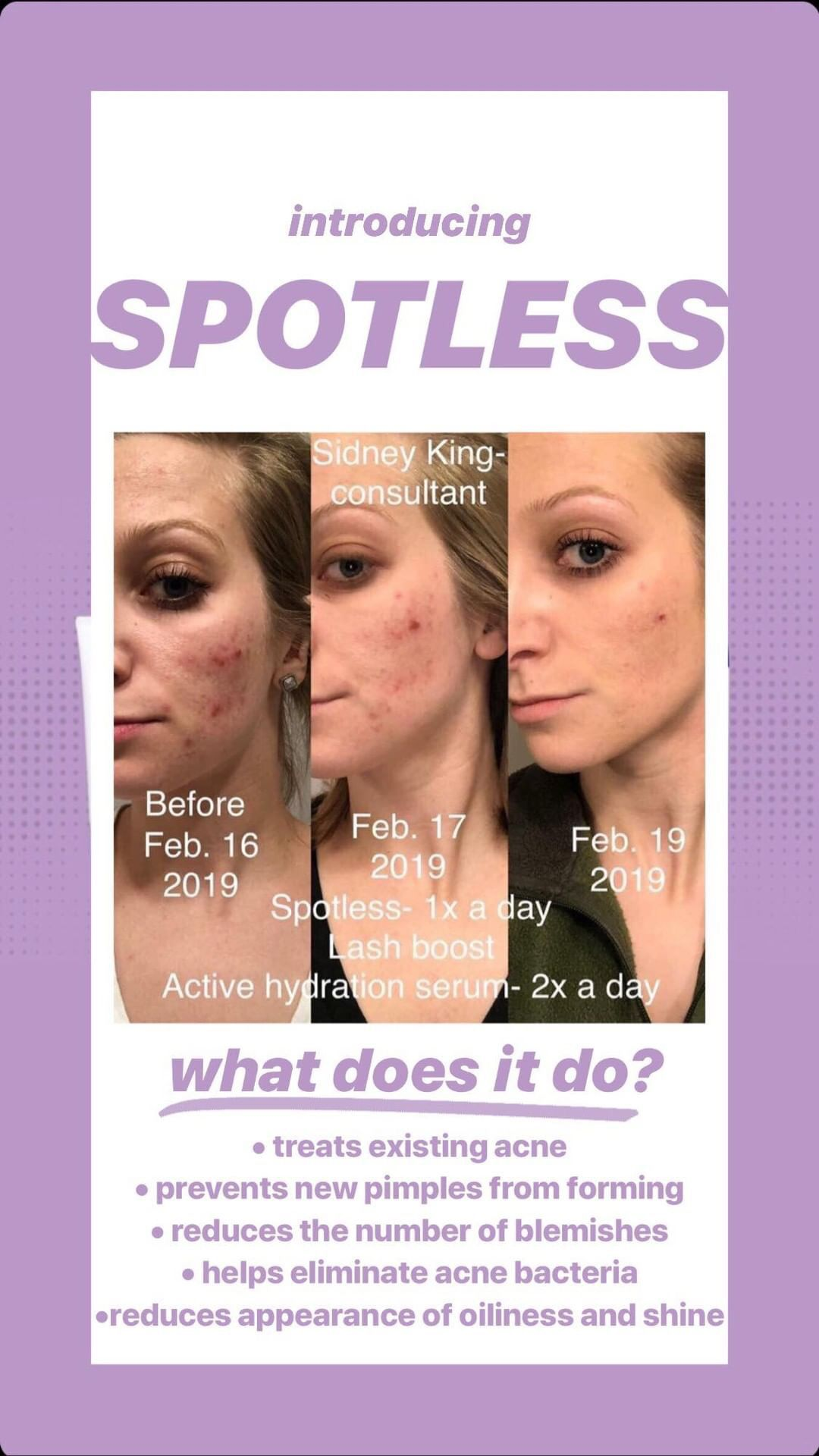 Adult acne is a thing of the past! Use the best skincare