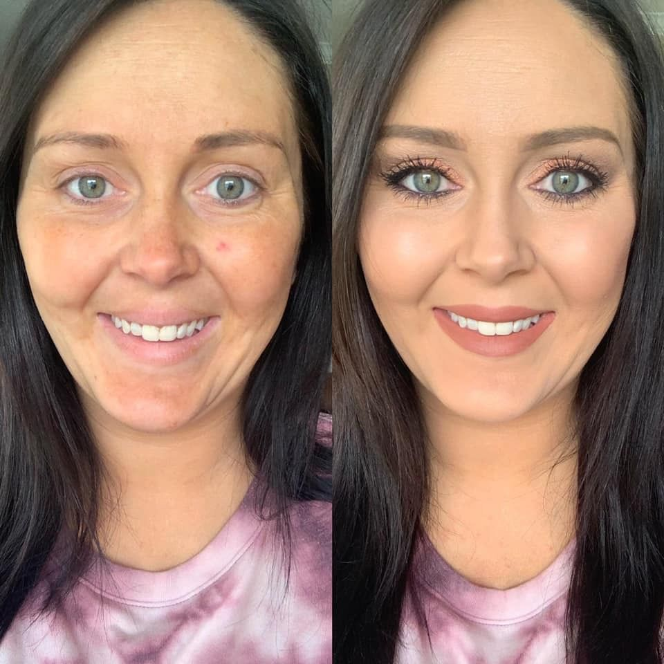 Before And After Face Moisturizer Cream Shadows Beauty Consultant