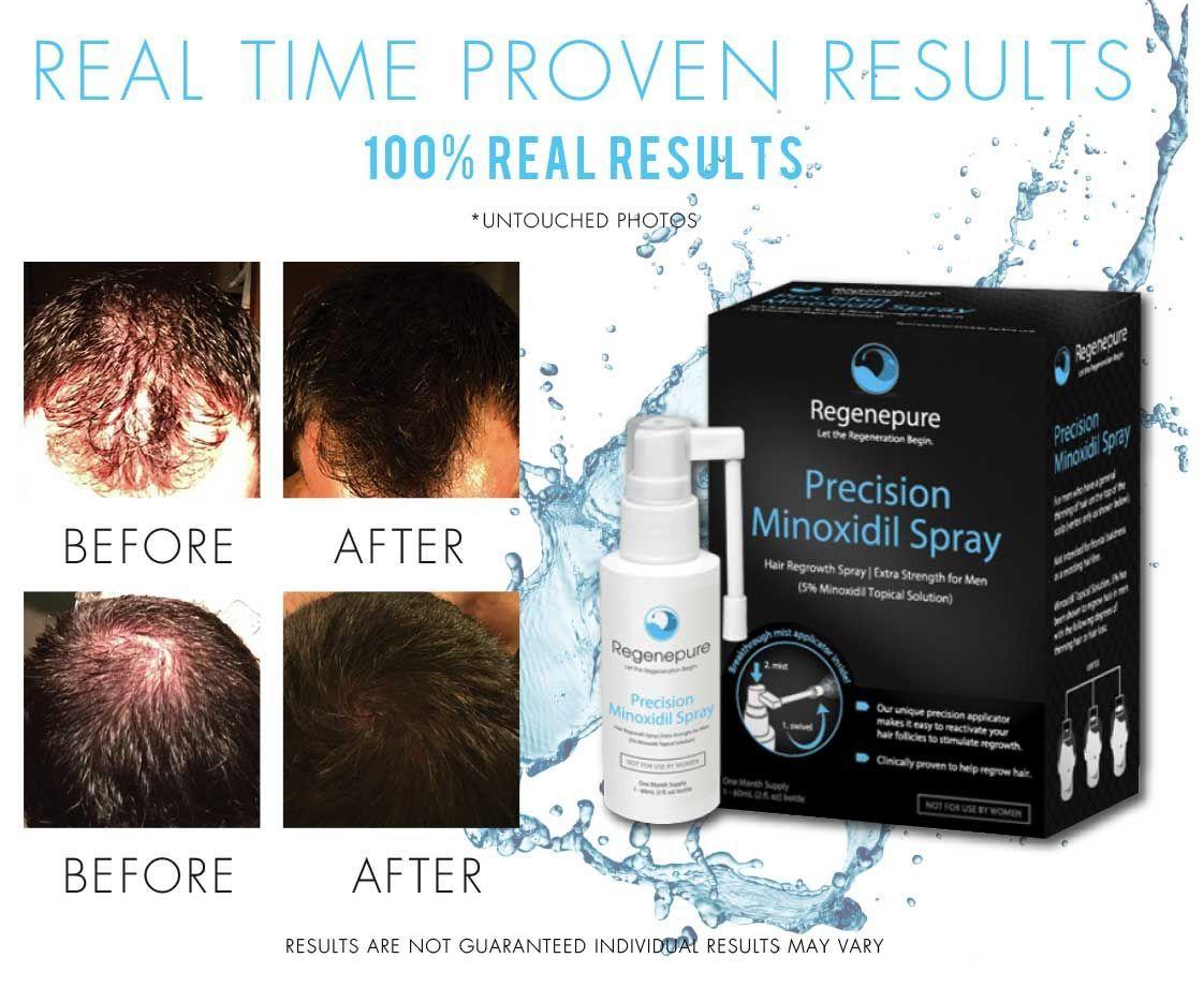 Hair loss shampoo and hair regrowth products for men u women hair
