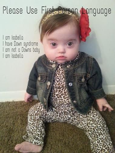 To The People Who Refer To My Daughter As A Down Syndrome Baby Down Syndrome Baby Down Syndrome Down Syndrome Kids