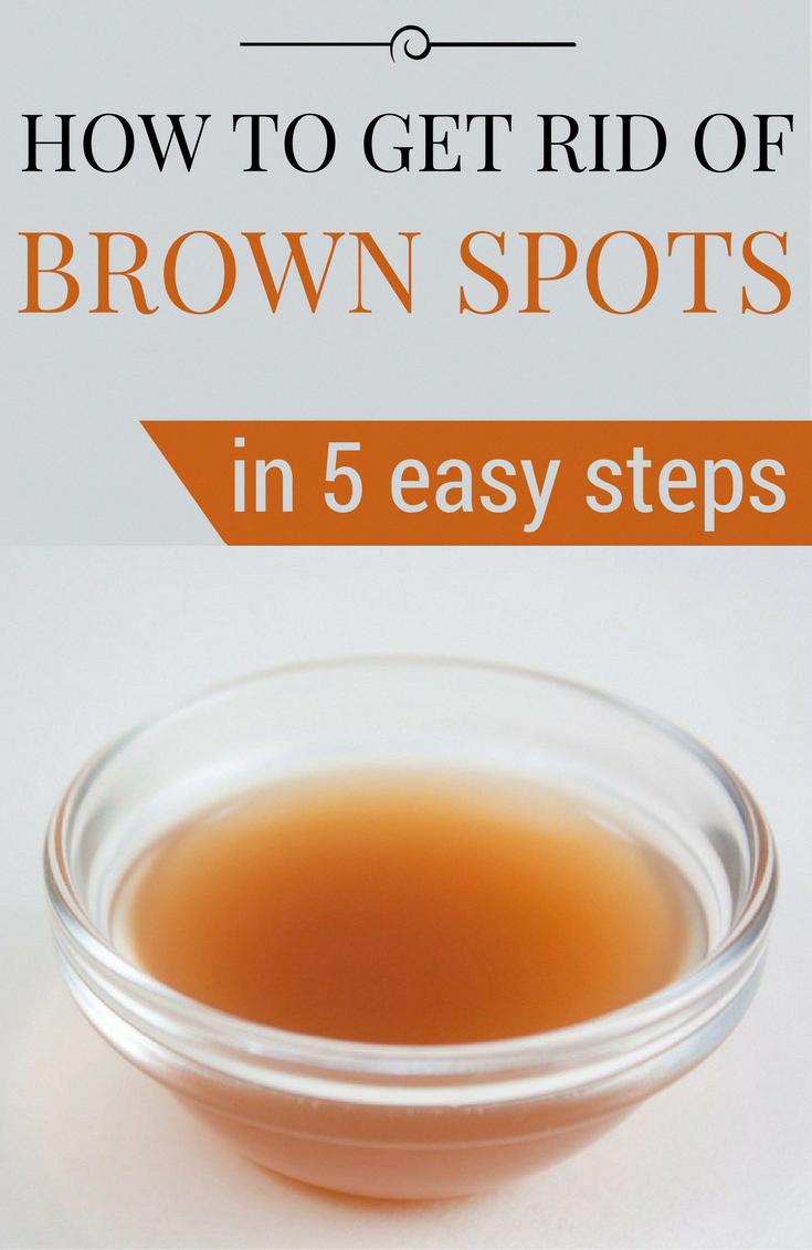 Tips on how to Get rid of Brown Spots on Face Normally #Fitness #CanBrownSpotsBeRemoved