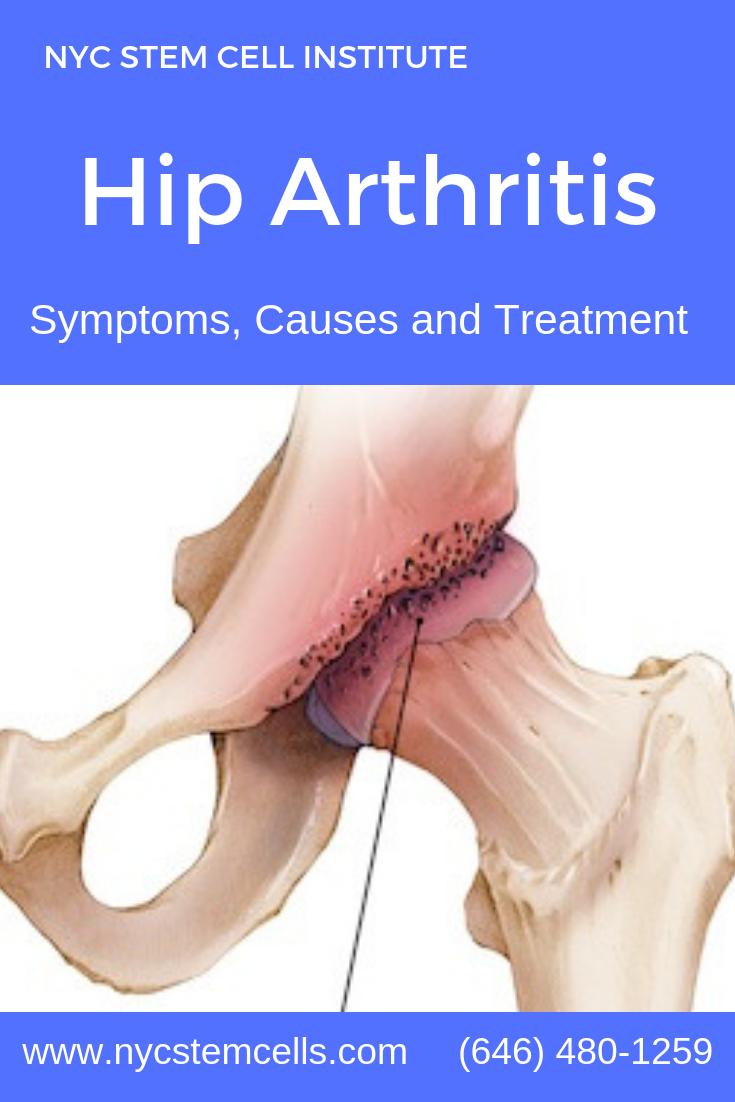 Do You Wonder What Does Arthritis Feel Like | Arthritis, Hip arthritis