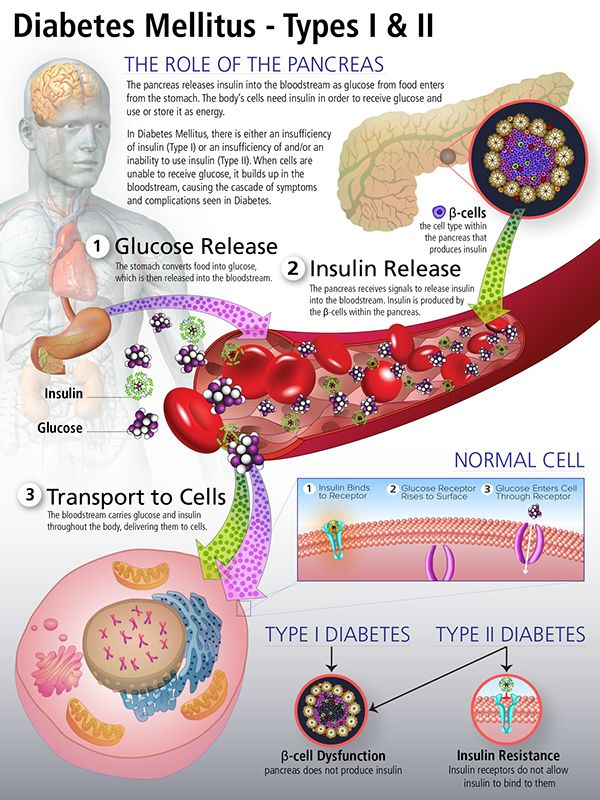 Diabetes Mellitus on Behance | Health and fitness | Pinterest ...