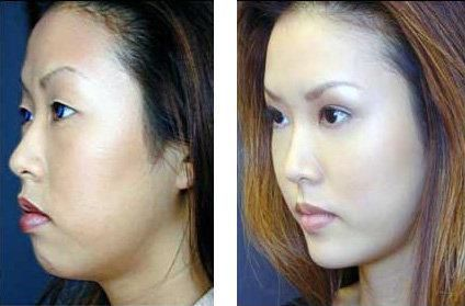 FACIAL PLASTIC COSMETIC & SURGEON   Dr. Myint's insights ...  Celebrity Lower Blepharoplasty