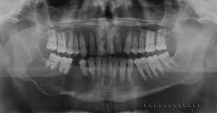 Image Result For Odontogenic Keratocyst Oral Pathology Tumor