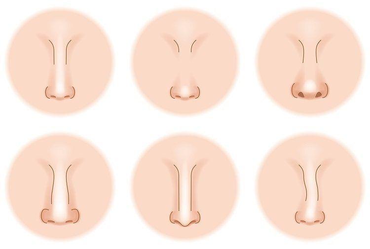 تاريخ جراحة تجميل الأنف ترجع أصول جراحات تجميل الأنف إلى مصر القديمة قبل الميلاد بحوالي 3000 عامكان من الشائع قطع أنوف اللصو Nose Shapes Shapes Stud Earrings