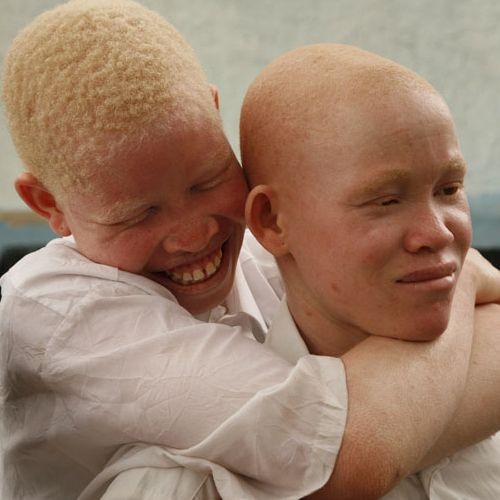 Essays On Life Art And Science Albinos In Africa Albino African Albinism Albino