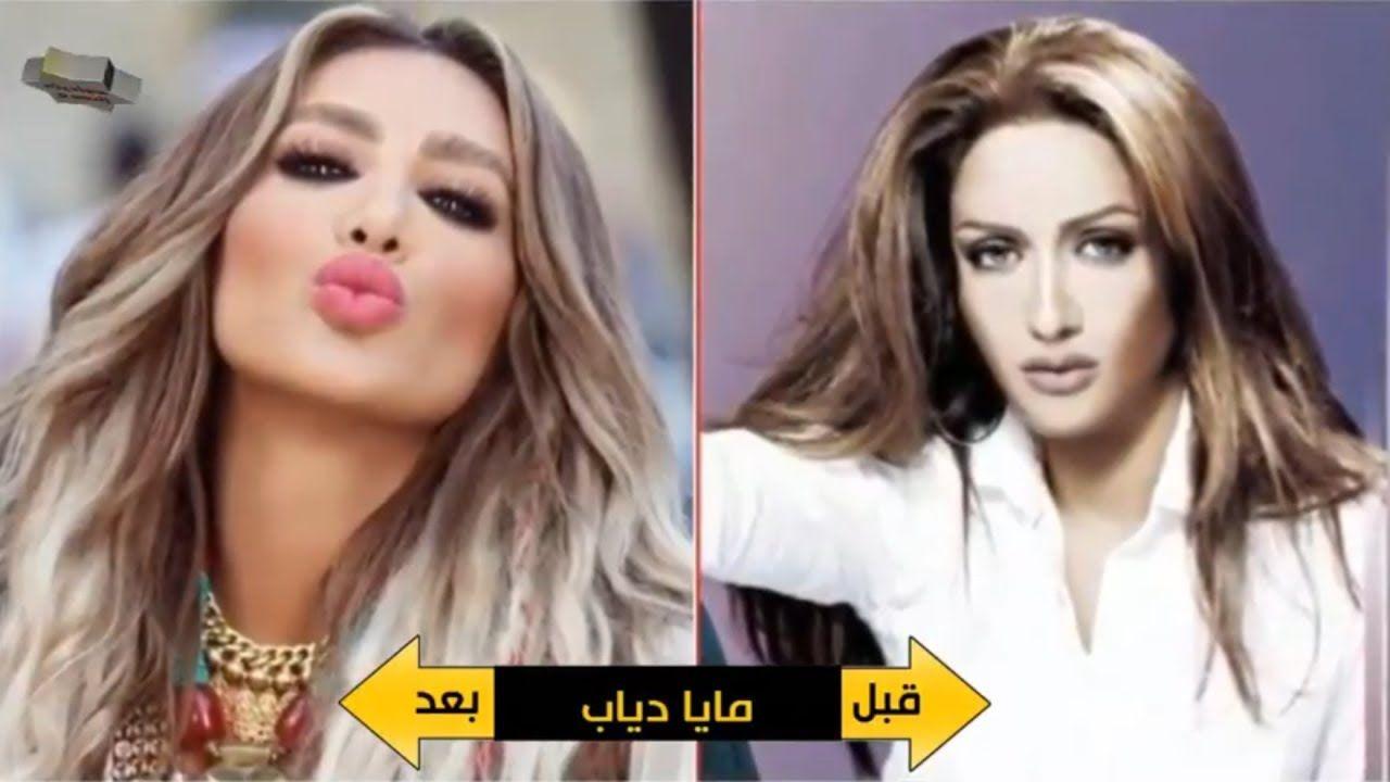 نجمات لبنان قبل وبعد نفخ الشفاه Stuff To Buy