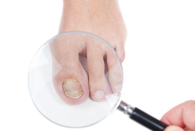 Síntomas de una infección por hongo en las uñas