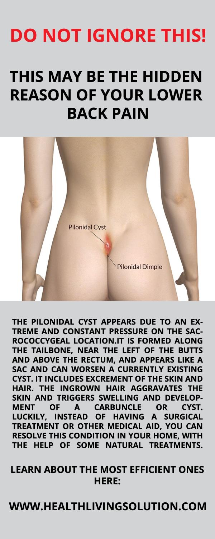 Sebaceous cyst near anus