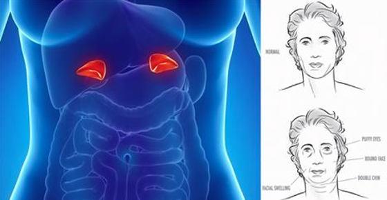 Viral Alternative News: 3 Warning Signs You Have Adrenal Fatigue (And What To Do About It)