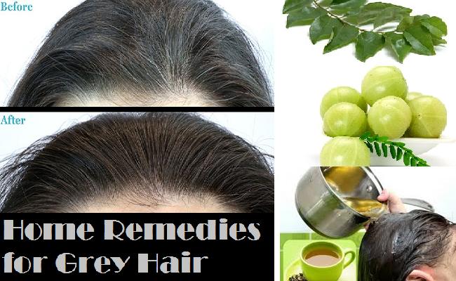 Home Remedies for Gray Hair | hair | Hair, Home remedies, Grey hair ...