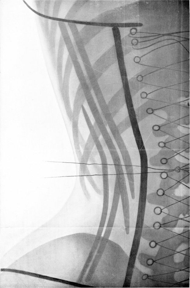 ded21c28e1 X-Ray of a Woman in a Corset