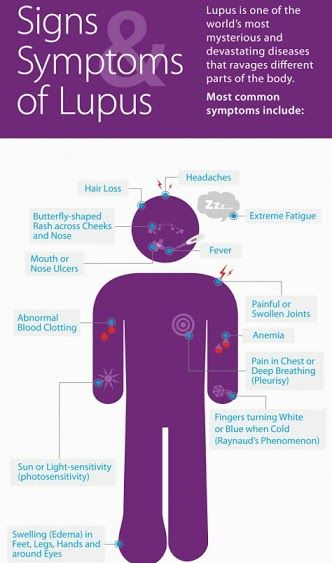 Taking On Several Forms The Autoimmune Disease Lupus Systemic