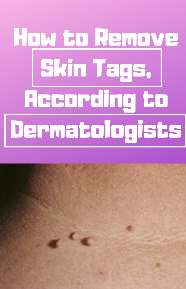 How to Remove Skin Tags, According to Dermatologists