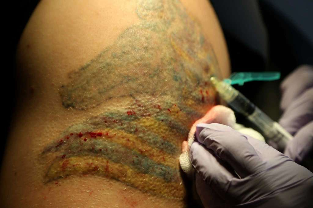 The History Of Tattoo Removal Tattoo Removal History Tattoos