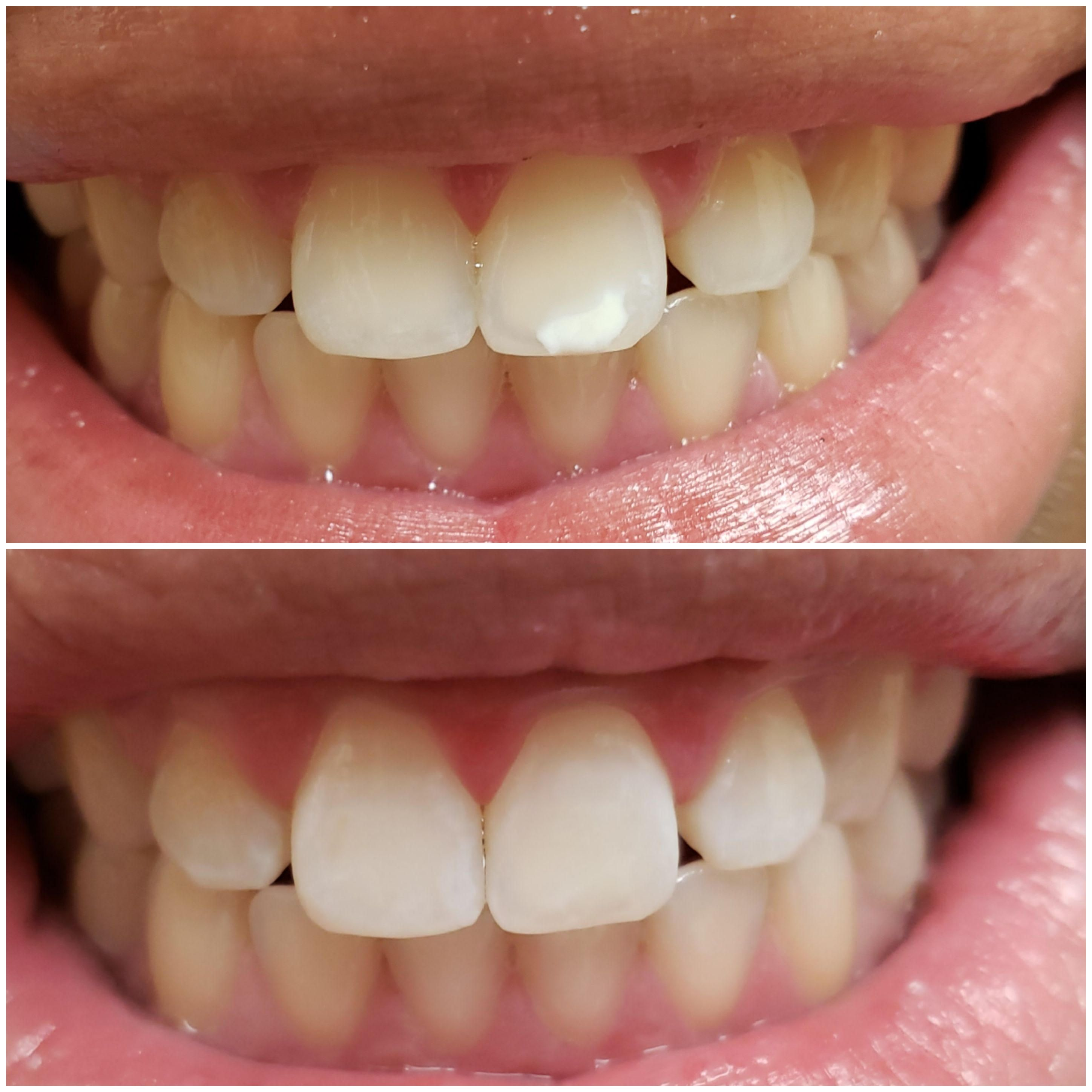 Getting rid of fluorosis white chalky spots without