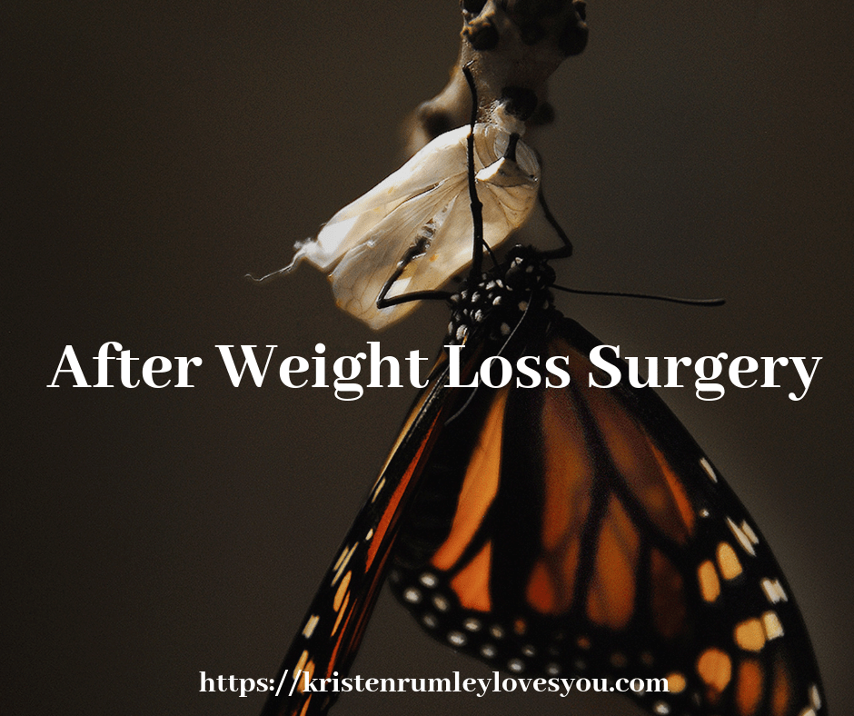 After Weight Loss Surgery Wls In 2019 Weight Loss Surgery