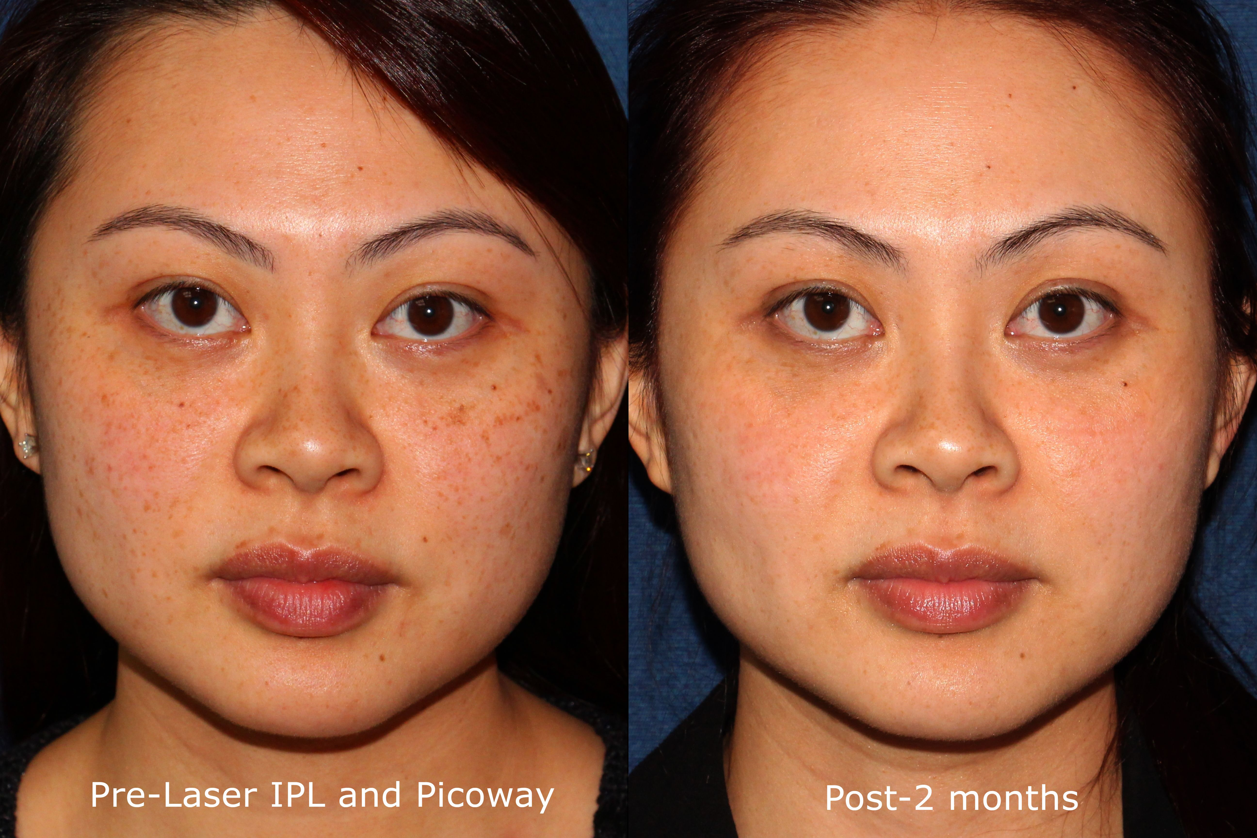 Laser IPL and Picoway before and after for brown spots by Dr  Wu