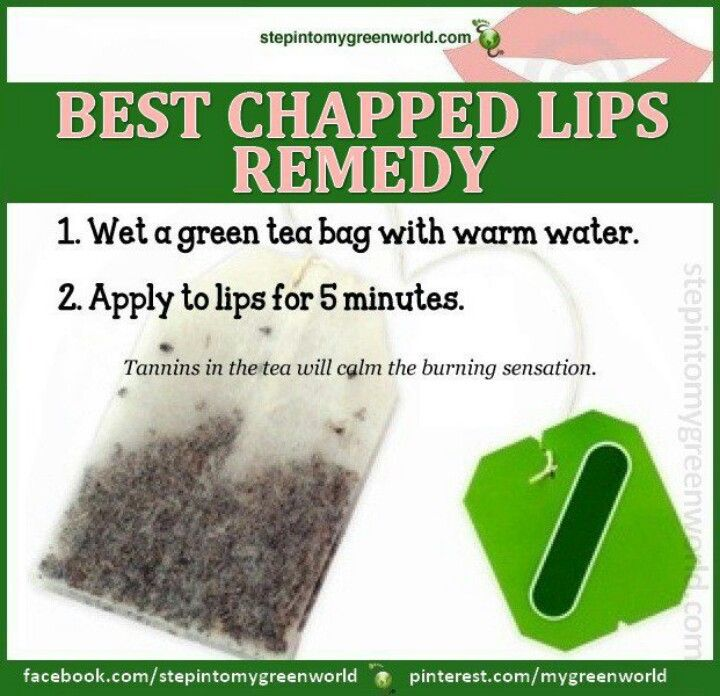 Chapped Lips Remedy, Chapped