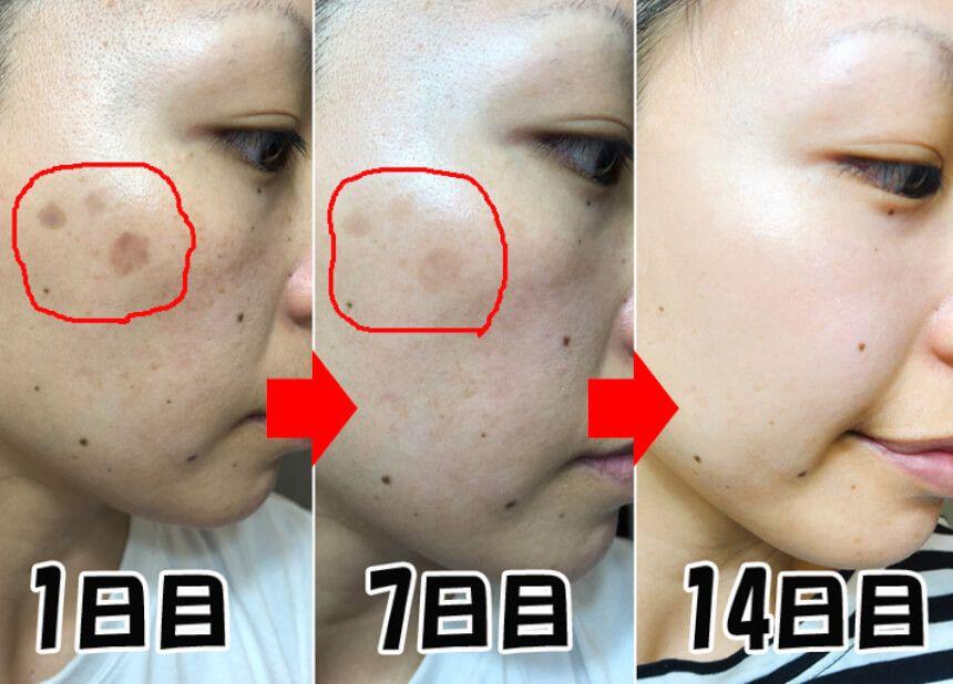 必見 顔のシミがたった2週間で消えた 皮膚科医がtvで暴露した 顔のシミ消し術 が凄すぎる pr 年々増えていく シミ ケアしても全然良くならなくて 諦めている方も多いと思いま シミウス zucks の続きを読む 顔のシミ シミ消し シミ