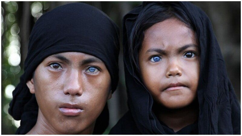 Unik Bocah Asal Sulawesi Ini Miliki Warna Bola Mata Biru Dan Merah Biru Mata Biru Mata Coklat