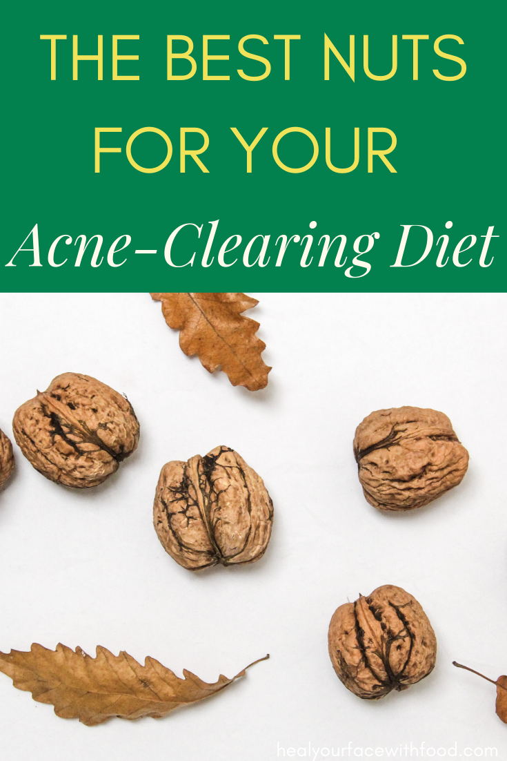 Best Nuts For Clear Skin Heal Your Face With Food Foods For Clear Skin Acne Causing Foods Food For Acne
