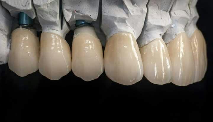 Porselen | dental | Pinterest | Anatomía dental, Dientes y Dental