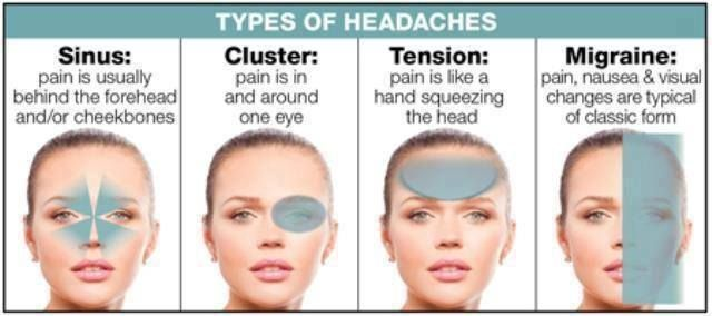 Can You Get Headaches From Allergies Migraine Headache Causes Pictures Symptoms And Medications Headache Types Headache Meaning Headache