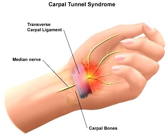 CTS is the cumulative effect of many collective factors affecting the wrist, and it is possible to be susceptible to this condition from birth due to congenital narrowing of the carpal tunnel.