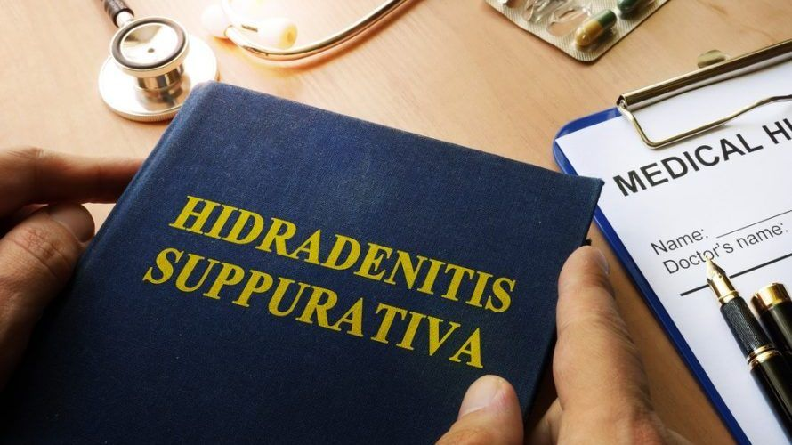 The Truth About the Best Hidradenitis Suppurativa Natural Treatment