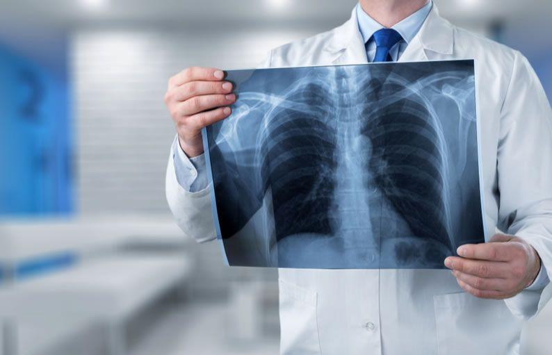 Radiologia E Radiografia Qual Diferenca E A Importancia Para