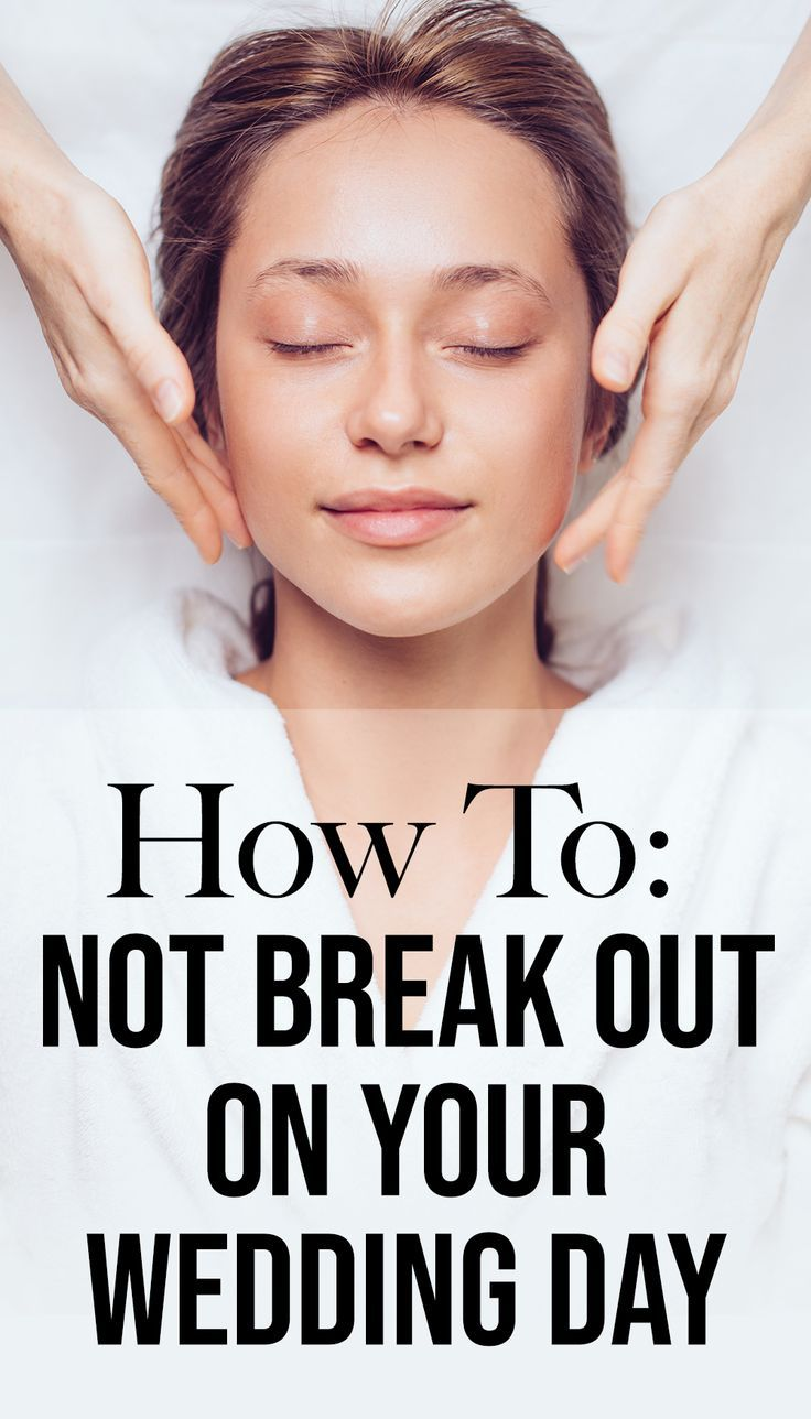 How To NOT Break Out Right Before Your Wedding Day