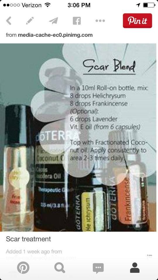 Scar Blend | doTERRA Essential Oils, Protocols and Recipes
