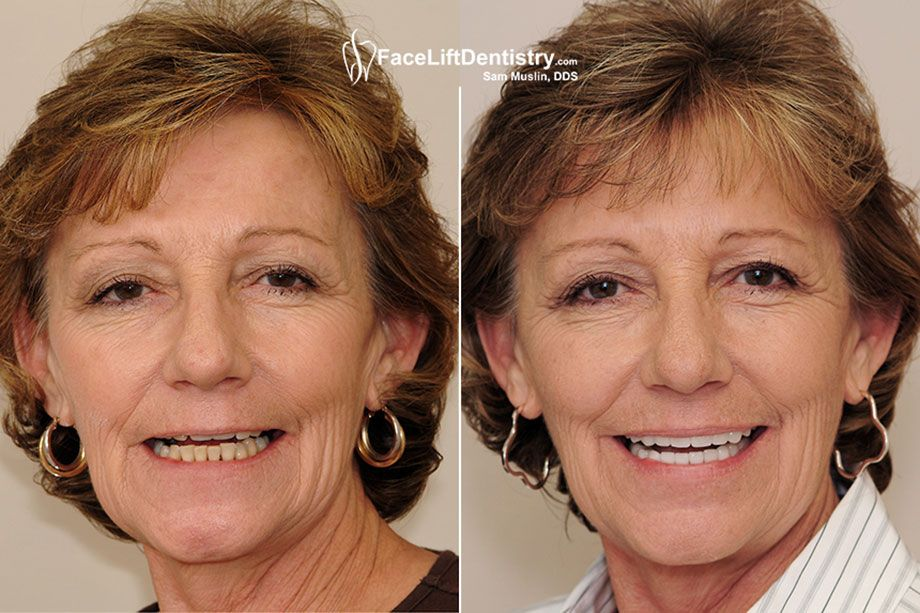 Underbite Correction without braces will provide you