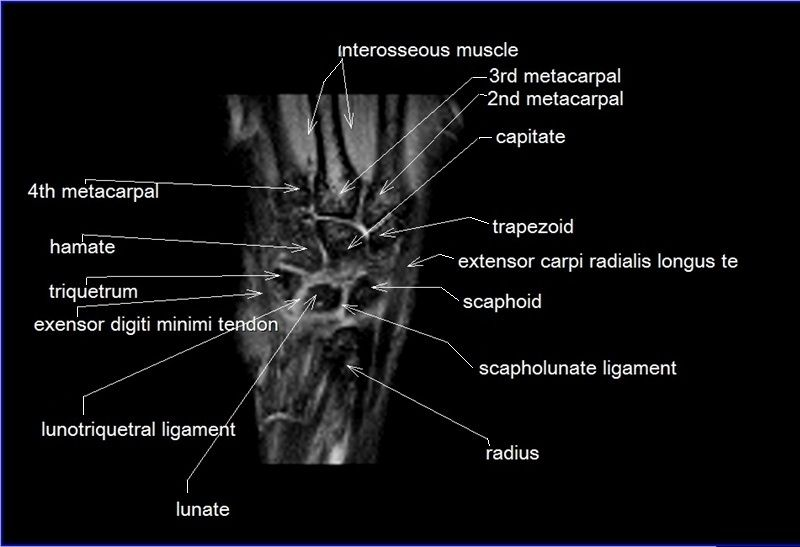 Mri Hand Tendons Diagram - Auto Wiring Diagram Today •
