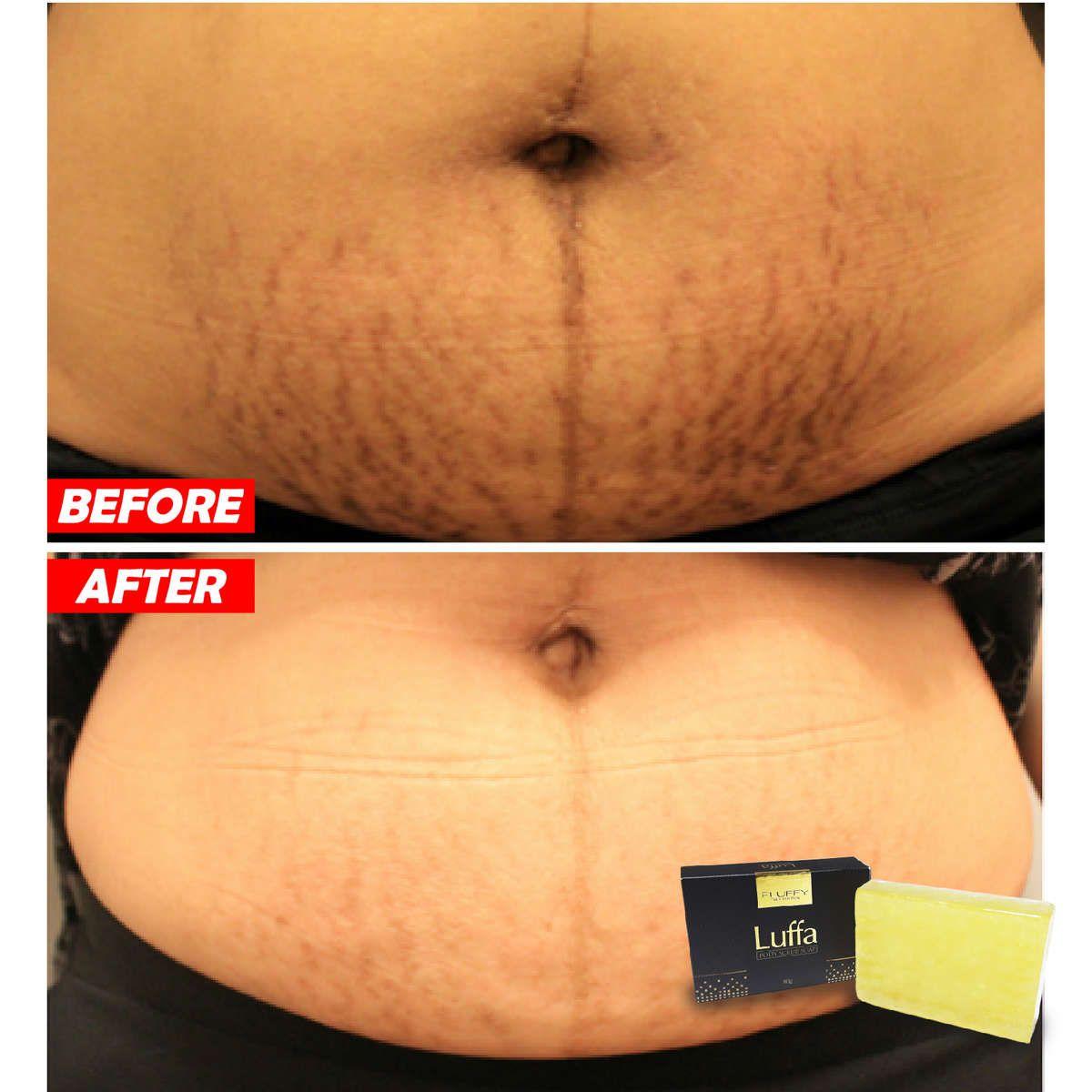 e8c2a07de6521e32f8aa193f8551689e - How To Get Rid Of Dirt Stains On Skin