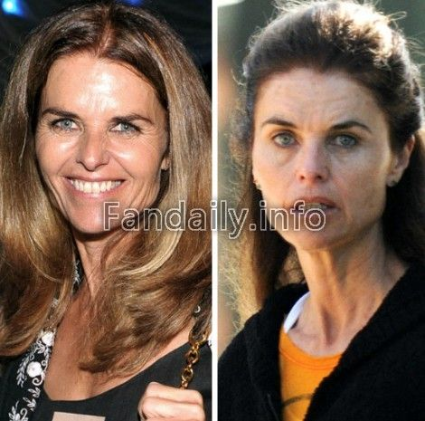 Pin By Celebrity Style On Celebrity No Makeup Makeup