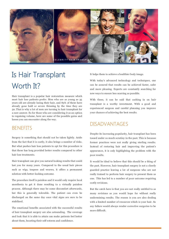 Is Hair Transplant Worth It By Andrew Kim Via Slideshare Celebrity