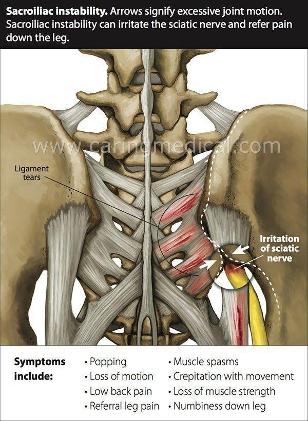 sacroiliac instability prolotherapy   Anatomy   Pinterest   Anatomía ...