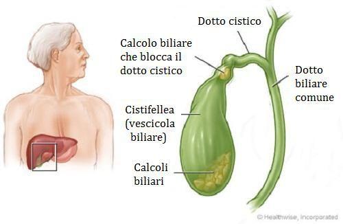 Calcoli biliari trattamento e prevenzione: quali sono i rimedi naturali migliori