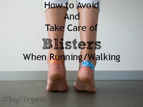 How to Avoid and Take Care of Blisters