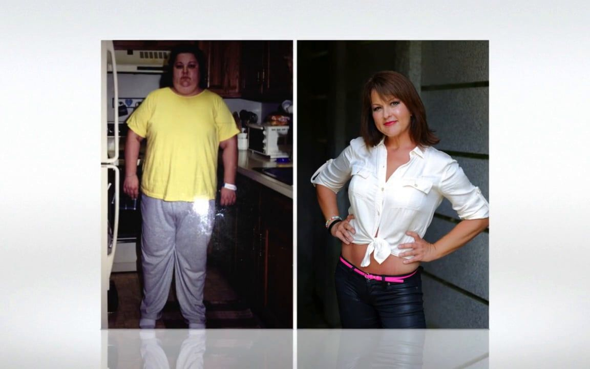My Bariatric Life Amazing Transformation Before And After Video