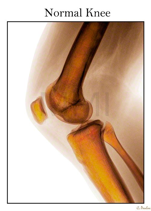 Interactive Knee Joint Anatomy Color X Ray | Body Scan | Pinterest