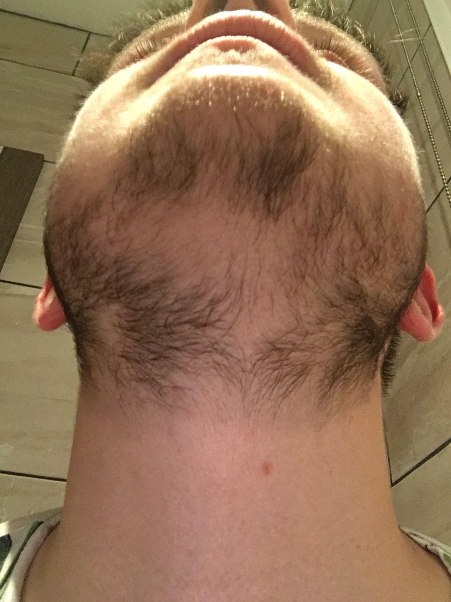 Around 6 Months Of Minoxidil Progress Not So Average Beard Styles