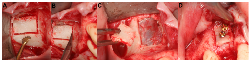 Figure 7 Harvesting of ideally shaped bone graft from the zygomatic bone.